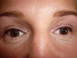 Oční linky - horní